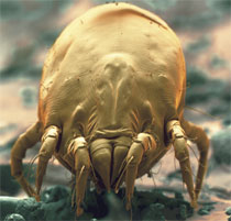 Photo of a dust mite. Credit: Eye of Science/Science Photo Library.